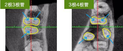 下顎第一大臼歯の根管